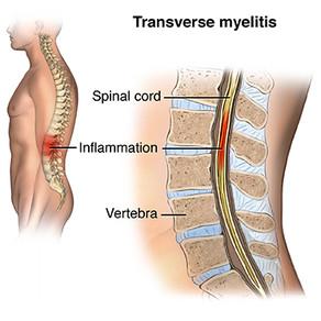 Transverse Myelitis - About my Disability