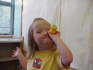 Down syndrome data