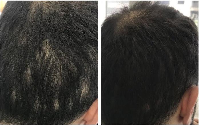 scar-hair.jpg