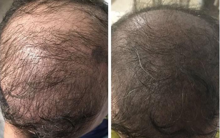 shading-hair.jpg