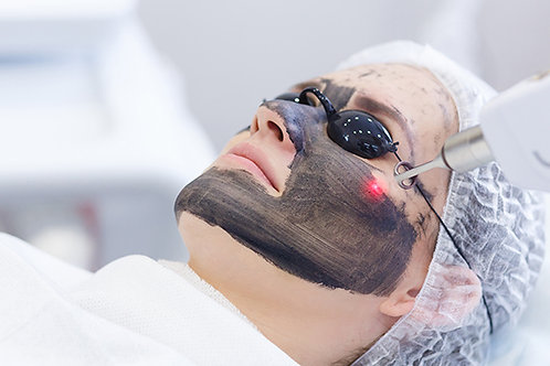 TWO CARBON LASER FACIAL PEEL TREATMENTS