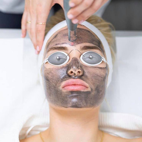 ONE CARBON LASER FACIAL PEEL TREATMENT WITH LED THERAPY