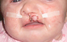 cleft lip and palate, dental needs