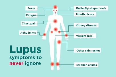 0219_Lupus-Symptoms-1024x683.jpg