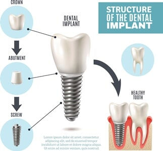 structure of a dental implants - near greenville, sc
