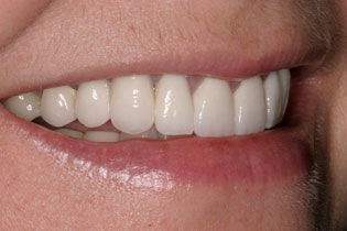 teeth whitening pickens sc