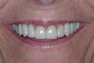 pickens sc teeth whitening