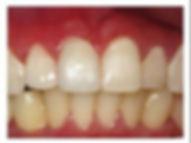 easley sc cosmetic dentist