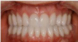 easley sc teeth whitening
