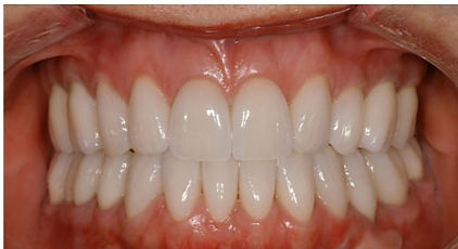 easley sc teeth whitening