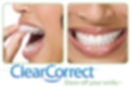 Clear Corrector teeth aligners