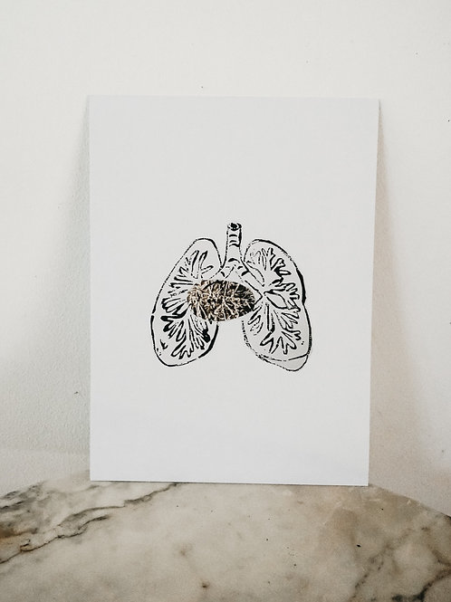 (PRINT)[intoxication] Lung, Linoleum X Metallic, art-print on paper, limited