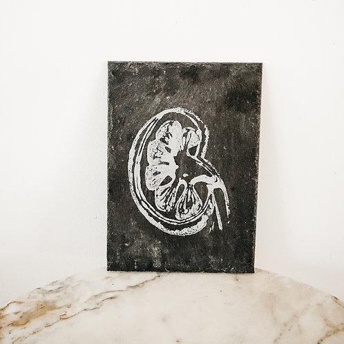 Kidney, Linoleum X Slate, original-print on slate, limited