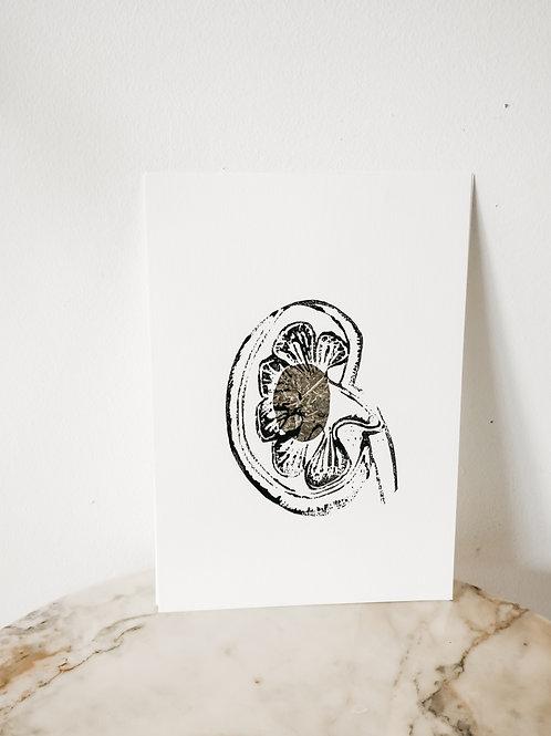 Kidney, Metallic X Linoleum, original-print on paper, limited