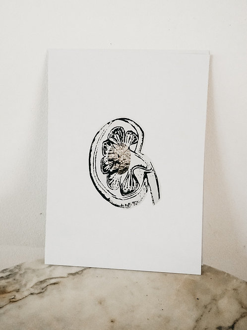 (PRINT)[intoxication] Kidney, Linoleum X Metallic, art-print on paper, limited