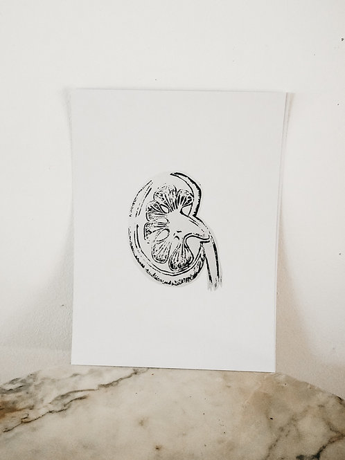 (PRINT) Kidney, Linoleum X Pure, art-print on premium-paper, limited