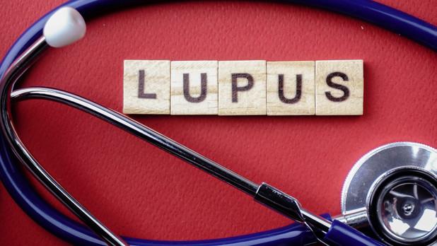 How do we diagnose systemic lupus (SLE)?