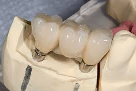 dental implant bridge, fixed bridge