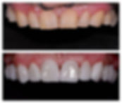 emax crowns