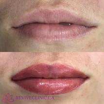Lips (some slight bruising)