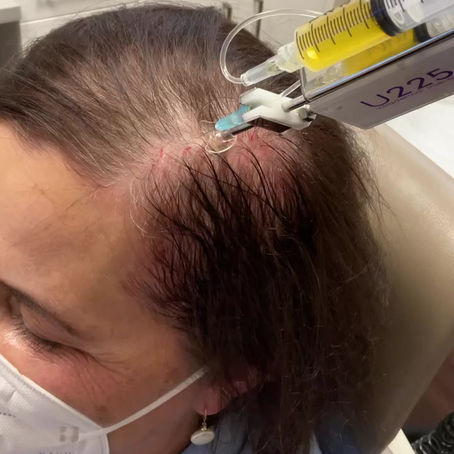 Treatments for my thinning hair…