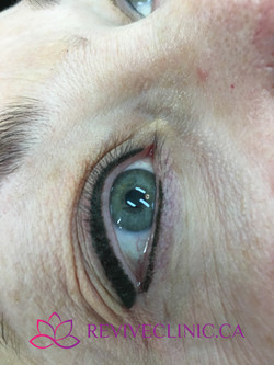 Upper and lower eyeliner