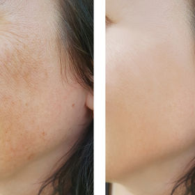 face woman wrinkles  before and after tr