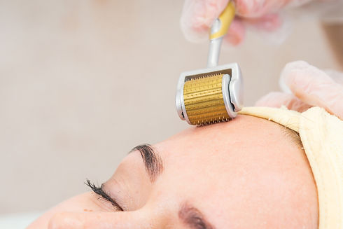 Medical cosmetic procedure. Mikronidling