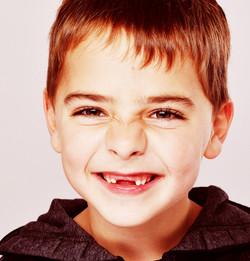 Boy with missing teeth!