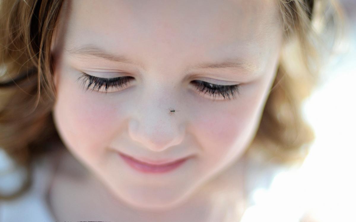 Greenfly on flower girl's nose!