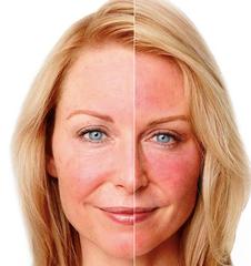 Toxina botulínica tipo A pode ser um tratamento eficaz para tratar o eritema facial em pacientes com