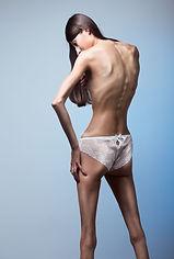 anorexia-nervosa.jpg