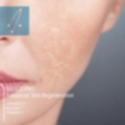 advanced skin.jpg