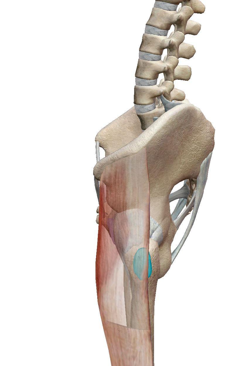 Tight ITB causes trochanteric bursitis