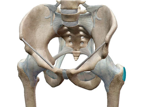 What's causing my hip pain?