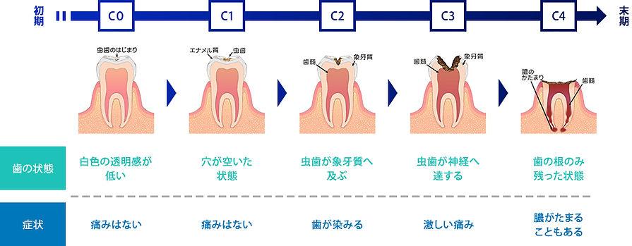 虫歯 初期~末期