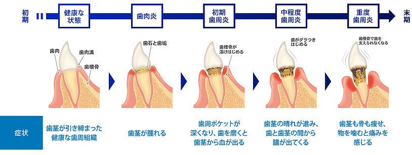 歯周病 初期~末期