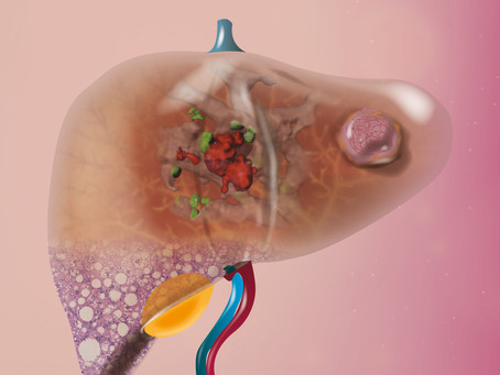 Liver cancer: which patients benefit from immunotherapy?