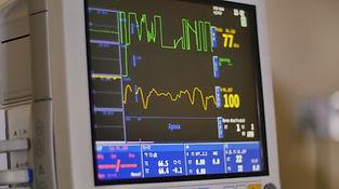ekg-heart-monitor-footage-064936212_icon