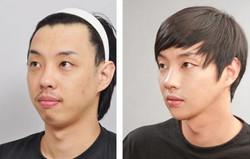 extreme-korean-plastic-surgery-1.jpg