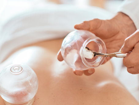 Health Benefits of Cupping therapy