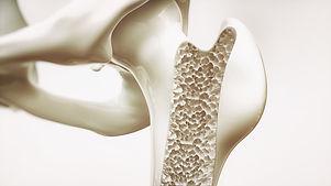 Osteoporosetherapie Knochendichte-Messung MVZ Schwäbisch Hall im QmediKo