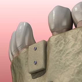 Knochenaufbau-Zahnimplantat-Schwaebisch-