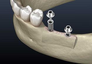 Knochenaufbau-Zahnimplantat-SHA_MKG-MVZ.