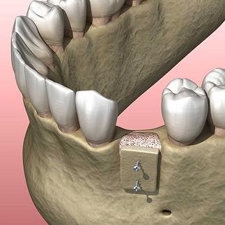 Knochenaufbau-Zahnimplantate-Schwaebisch