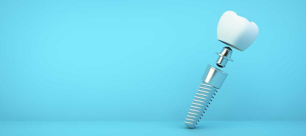 Zahnimplantat_SHA_Was-ist-ein-implantat.