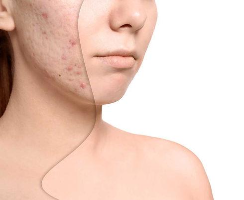 Behandlung-von-Aknenarben-SHA.jpg