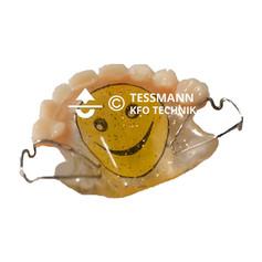 Tessmann KFO Technik