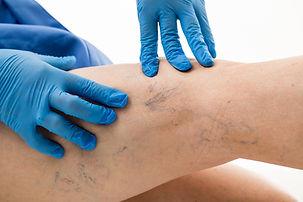 Krampfaderleiden und Besenreiser Praxis für Gefäßchirurgie Crailsheim