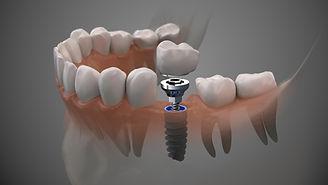 Zahnimplantat_SHA_Schwaebisch-Hall.jpeg